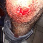 Un făgărășean a fost mușcat de vulpe